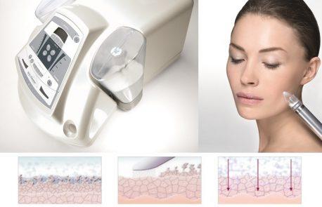 slappe huid behandeling bij schoonheidsspecialiste beautysalon Beauty Betty Delft
